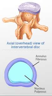 herniated disc 1